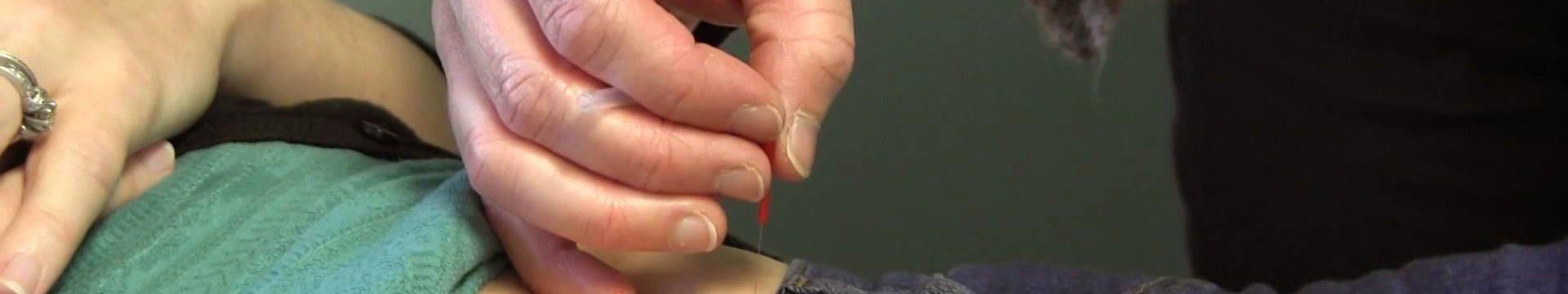 Acupuncture Treatment For Fertility