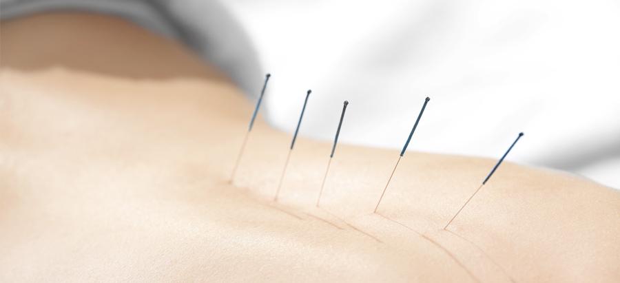 Acupuncture For Sciatica In Orlando