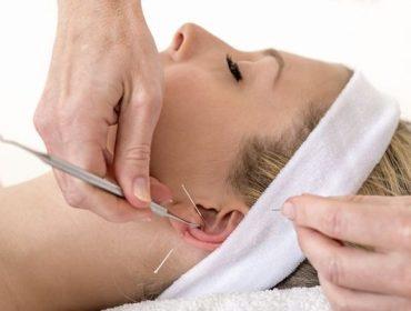 Auriculotherapy In Orlando