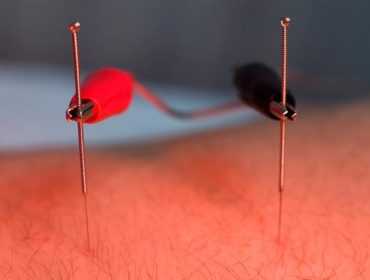 Electro Acupuncture Orlando