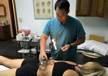 Dr. Alexander Treating patient with cupping therapy
