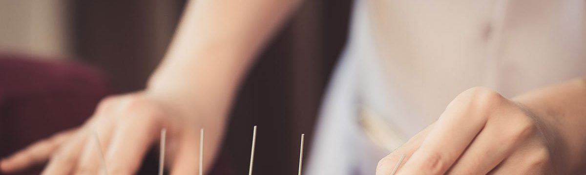 How Does Acupuncture Work To Relieve Pain?